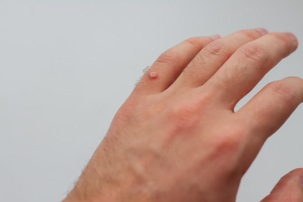 Mụn cóc gây mất thẩm mỹ bề mặt da