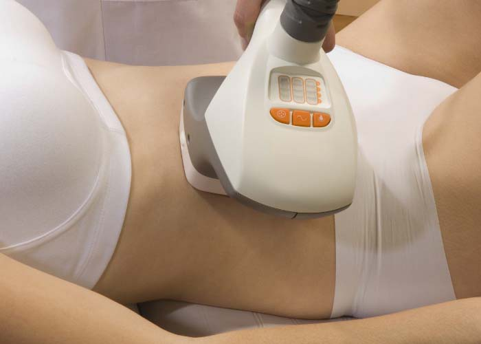 Sau sinh bao lâu được đánh mỡ bụng?