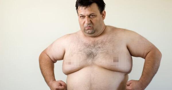 Nguyên nhân mỡ ngực nam
