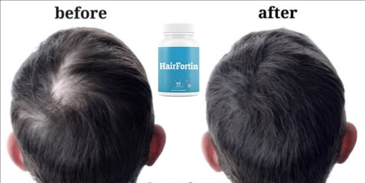 Hairfortin Review - Can This Supplement Help You Stop Hair Loss?